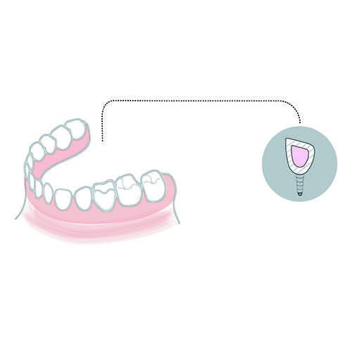 elevacion-seno-maxilar-implantes-dentales-clinica-dental-marbella-bcdm